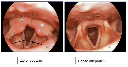 Отдел микрохирургии гортани и фониатрии