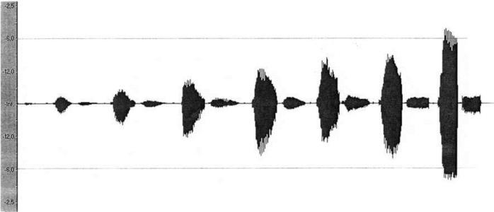 спектральный компьютерный анализ голоса – метод ранней и дифференциальной диагностикинарушений голосовой функции